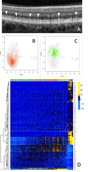 Figure 1 Pseudodrusen studies. (A) Subretinaol deposits in patients on a retinal scan. (B,C) The results of a single immune cell sequencing showing clear differences between 'good' (red) and 'bad' active immune cells. (D) Heatmap showing which genes in normal and diseased retinal immune cells vary (yellow).